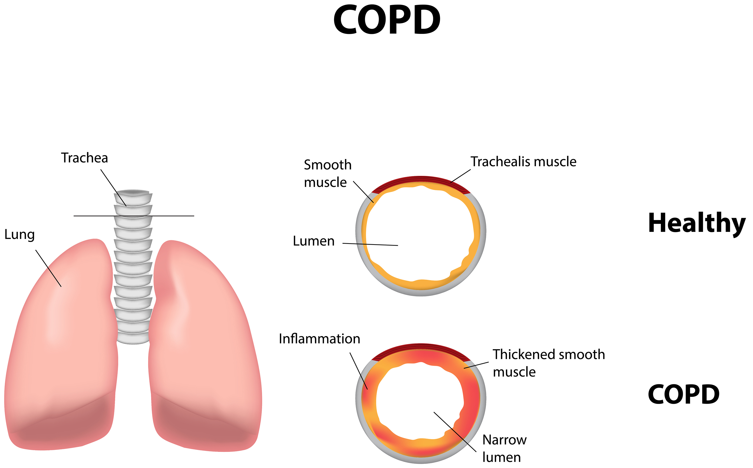 copd case study for nursing students
